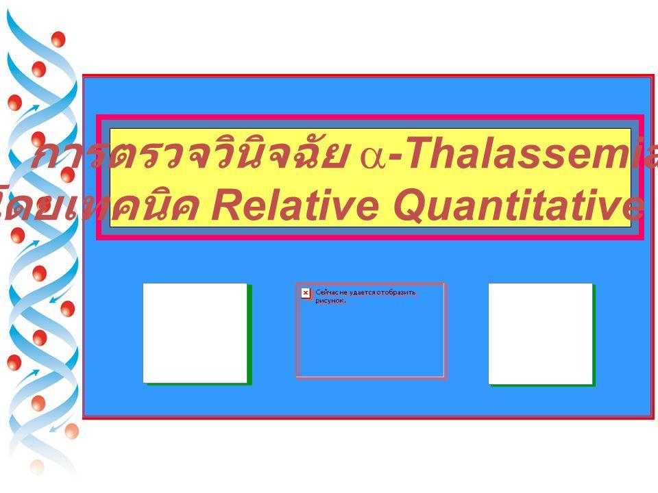 Bart's H A (2.35) F (1.14) A2 (3.65) J Bangkok(1.14) Hekinan Dhonburi Malay New York Hope Pyrgos Kodaira E Lepore D-Iran Cs (4.95) Pakse Tak (4.25) D Punjab (4.15) S (4.35) Montgomery Q-Mahidol RT of Hb Variant Korle-Bu (3.8) Normal Hb Hb Variant
