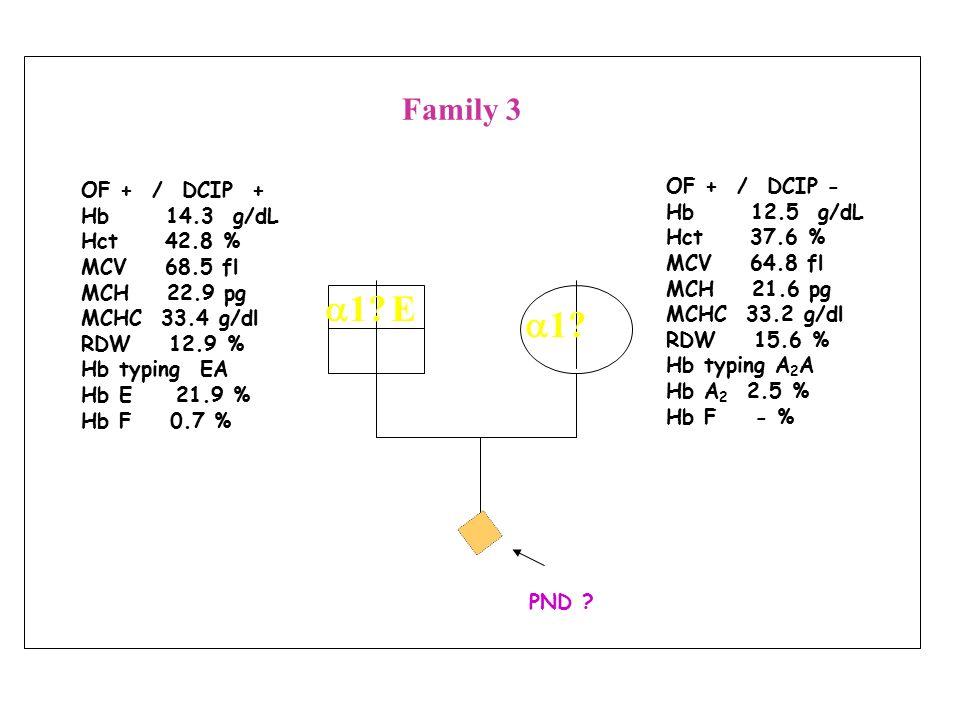 OF + / DCIP + Hb 12 g/dL Hct 35 % MCV 61.6 fl MCH 21.2 pg MCHC 29 g/dl RDW - % Hb typing EE Hb E 79.8 % Hb F 3.4 % OF - / DCIP - Hb 15.3 g/dL Hct 43 % MCV 88.7 fl MCH 31.3 pg MCHC 35.2 g/dl RDW - % Hb typing A 2 A Hb A 2 2.6 % Hb F 3.2 % PND .