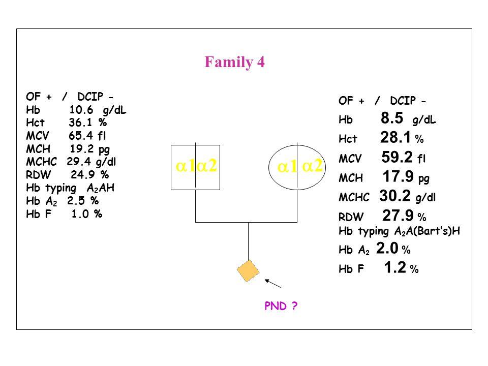OF + / DCIP - Hb 12.5 g/dL Hct 37.6 % MCV 64.8 fl MCH 21.6 pg MCHC 33.2 g/dl RDW 15.6 % Hb typing A 2 A Hb A 2 2.5 % Hb F - % OF + / DCIP + Hb 14.3 g/dL Hct 42.8 % MCV 68.5 fl MCH 22.9 pg MCHC 33.4 g/dl RDW 12.9 % Hb typing EA Hb E 21.9 % Hb F 0.7 % PND .
