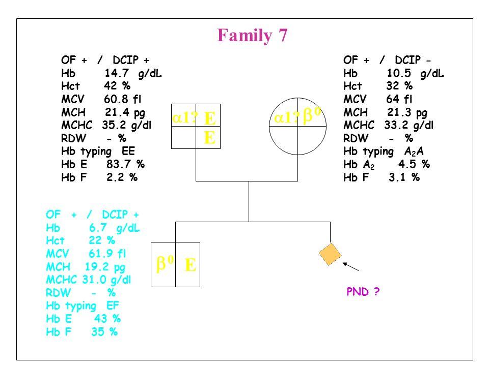 OF + / DCIP - Hb 13.6 g/dL Hct 39.6 % MCV 66.8 fl MCH 22.9 pg MCHC 34.3 g/dl RDW - % Hb typing A 2 A Hb A 2 6.8 % Hb F 1.2 % OF + / DCIP - Hb 10.6 g/dL Hct 30.7 % MCV 68.