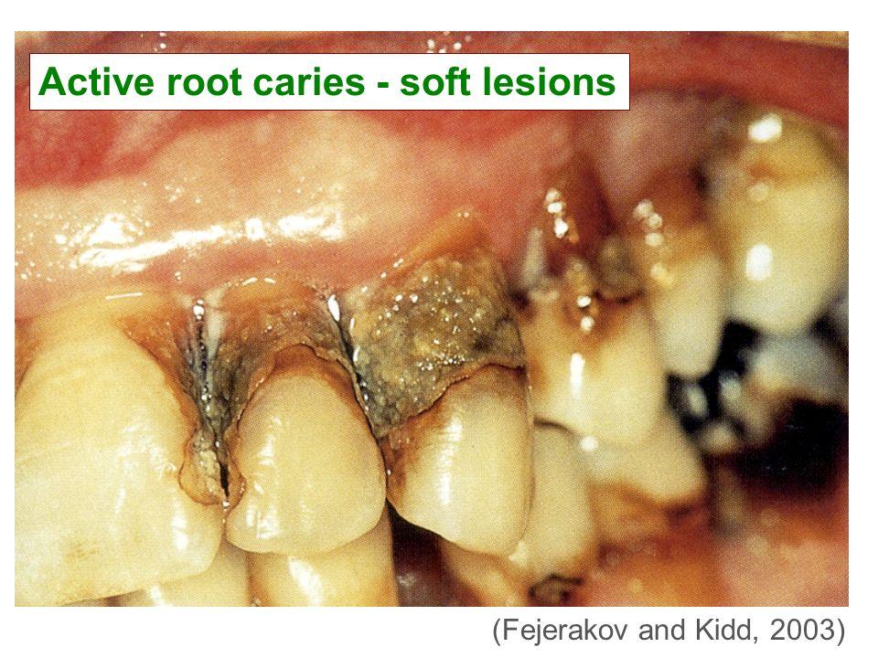 Active root caries - soft lesions (Fejerakov and Kidd, 2003)