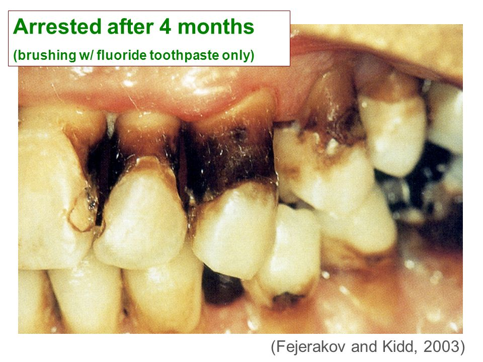 Arrested after 4 months (brushing w/ fluoride toothpaste only)