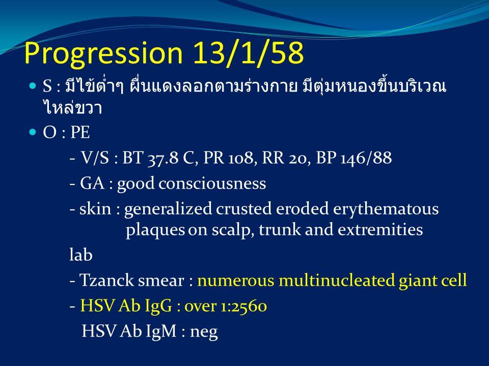 Progression 13/1/58 S : มีไข้ต่ำๆ ผื่นแดงลอกตามร่างกาย มีตุ่มหนองขึ้นบริเวณ ไหล่ขวา O : PE - V/S : BT 37.8 C, PR 108, RR 20, BP 146/88 - GA : good con