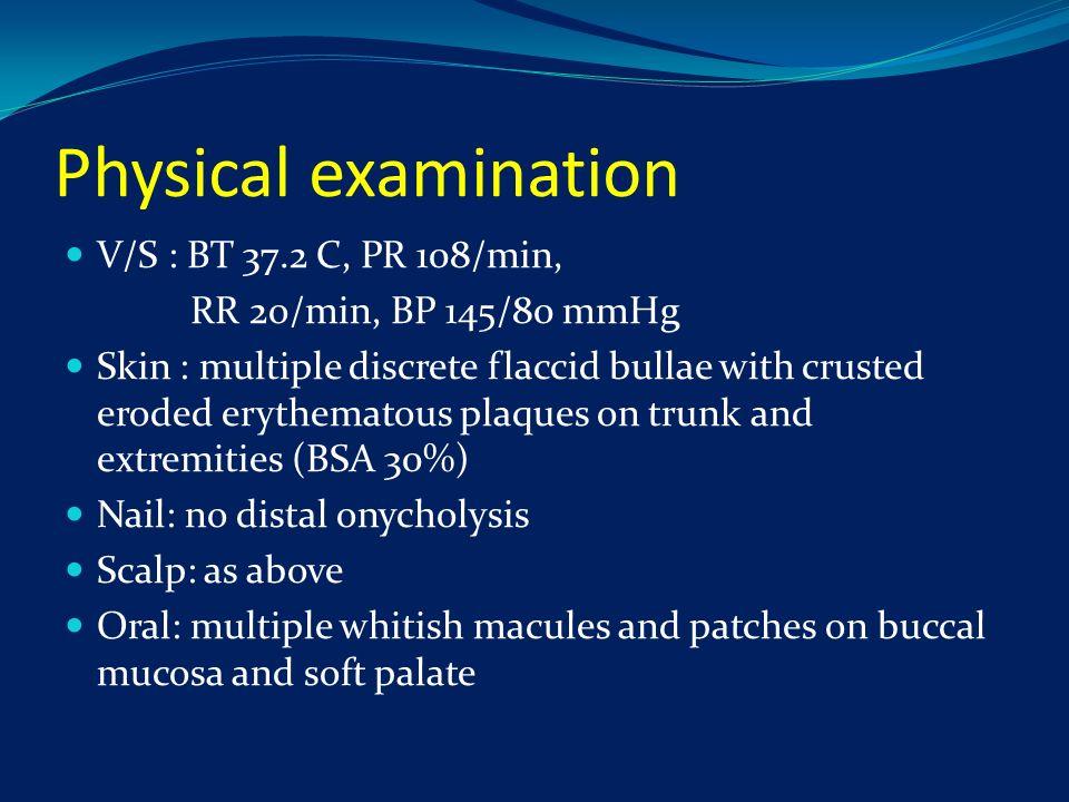 Physical examination V/S : BT 37.2 C, PR 108/min, RR 2o/min, BP 145/80 mmHg Skin : multiple discrete flaccid bullae with crusted eroded erythematous p