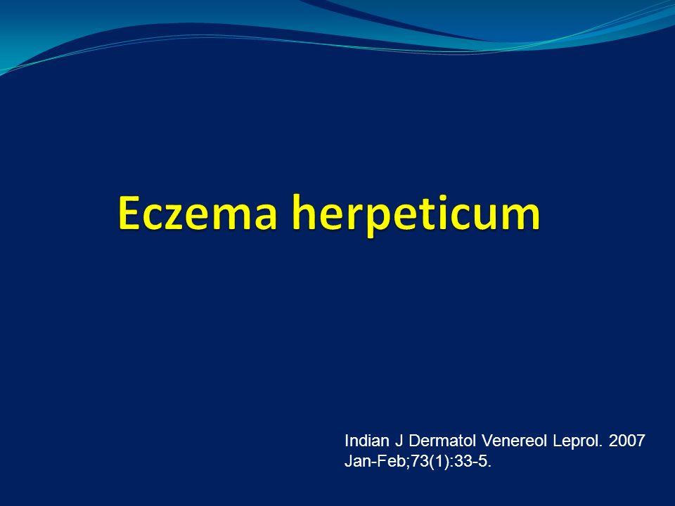 Indian J Dermatol Venereol Leprol. 2007 Jan-Feb;73(1):33-5.