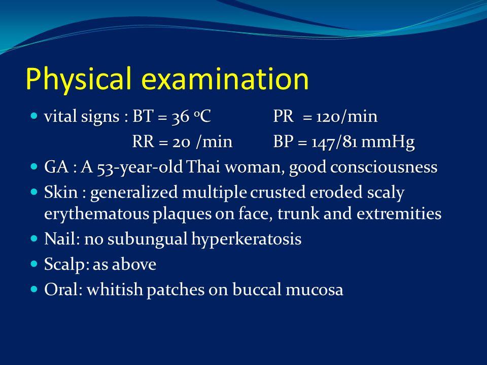 Physical examination vital signs : BT = 36 0 CPR = 120/min vital signs : BT = 36 0 CPR = 120/min RR = 20 /minBP = 147/81 mmHg RR = 20 /minBP = 147/81