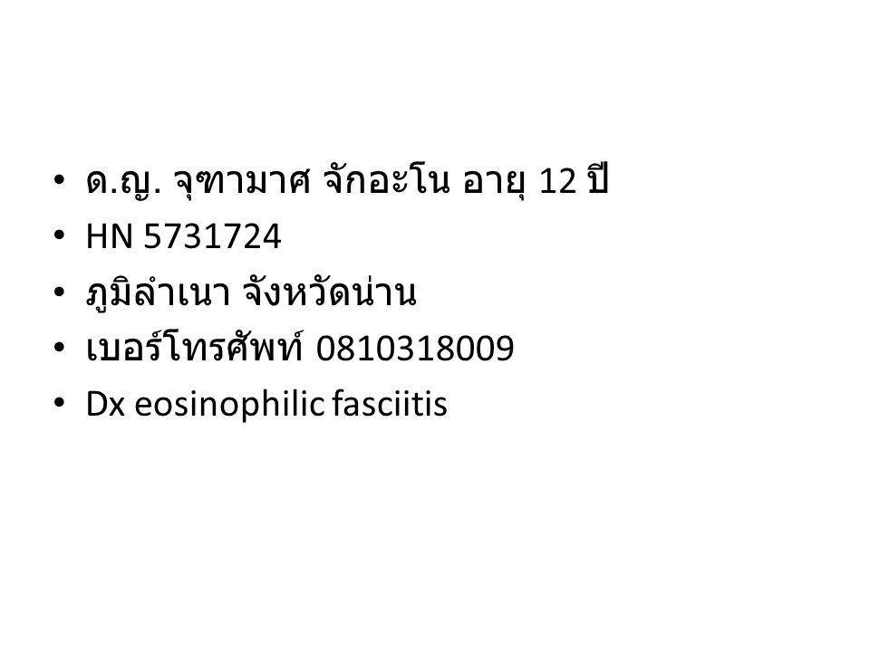 ด. ญ. จุฑามาศ จักอะโน อายุ 12 ปี HN 5731724 ภูมิลำเนา จังหวัดน่าน เบอร์โทรศัพท์ 0810318009 Dx eosinophilic fasciitis
