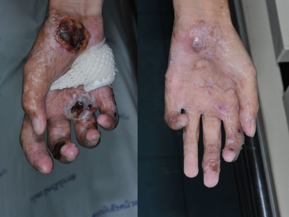 PE – multiple discrete well defined crusted, erythematous ulcer with some yellowish discharge at scalp, both extremities diameter 2-3 cm, not tender – Multiple well defined skin color hypertrophic scar on trunk and extremities – Flexion contracture of both hands – Proximal onychodystrophy of nail plate – No hirsutism – No mucosal involvement