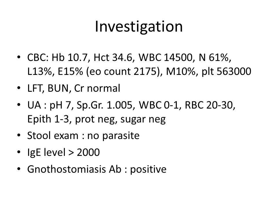 Investigation FANA : negative Serum iron 20, TIBC 231, transferrin sat 8.7, Ferritin 73 Hb typing – normal CXR : no active pulmonary infiltration Film KUB : no definite opaque urinary tract stone.