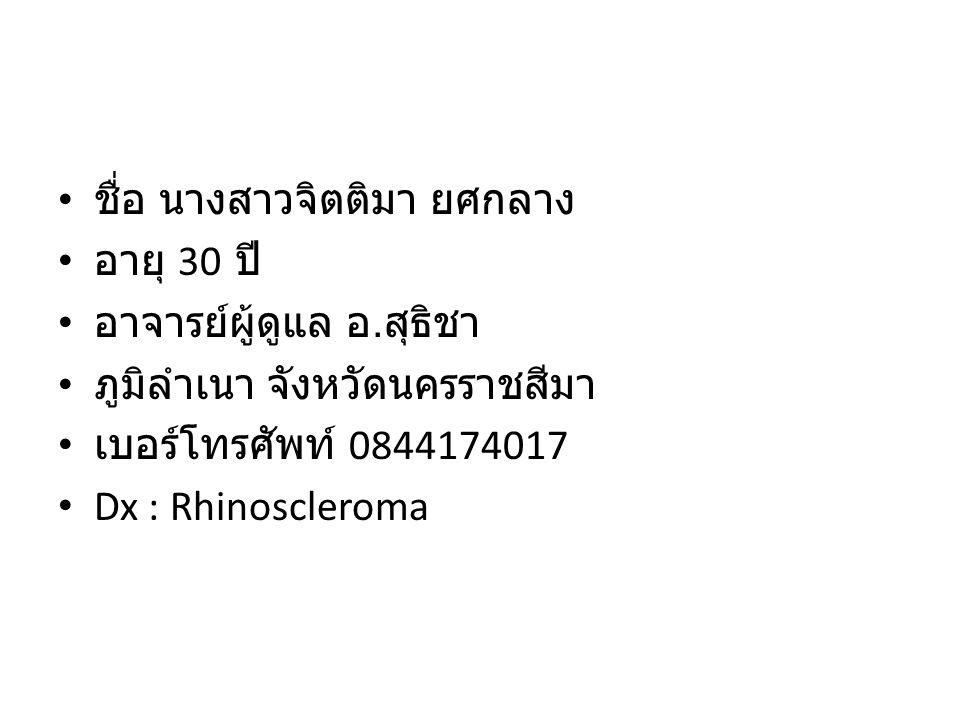 ชื่อ นางสาวจิตติมา ยศกลาง อายุ 30 ปี อาจารย์ผู้ดูแล อ. สุธิชา ภูมิลำเนา จังหวัดนครราชสีมา เบอร์โทรศัพท์ 0844174017 Dx : Rhinoscleroma