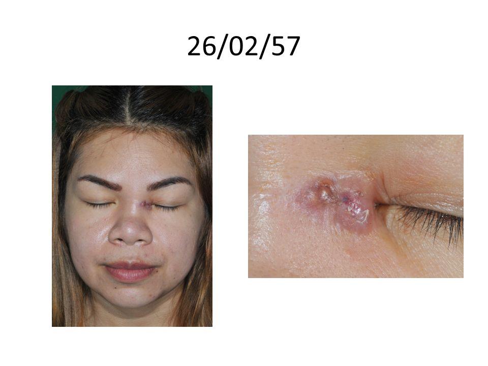 Home med: Itraconazole(100) 2x2 pc/56 Bactrim 2x1/28 Motilium 1xprn/20 CaCO3(600) 1x2/30 FBC 1x2/30 Folic1x1/15 CB prn Loratadine(10)1x2 ยาจาก ENT