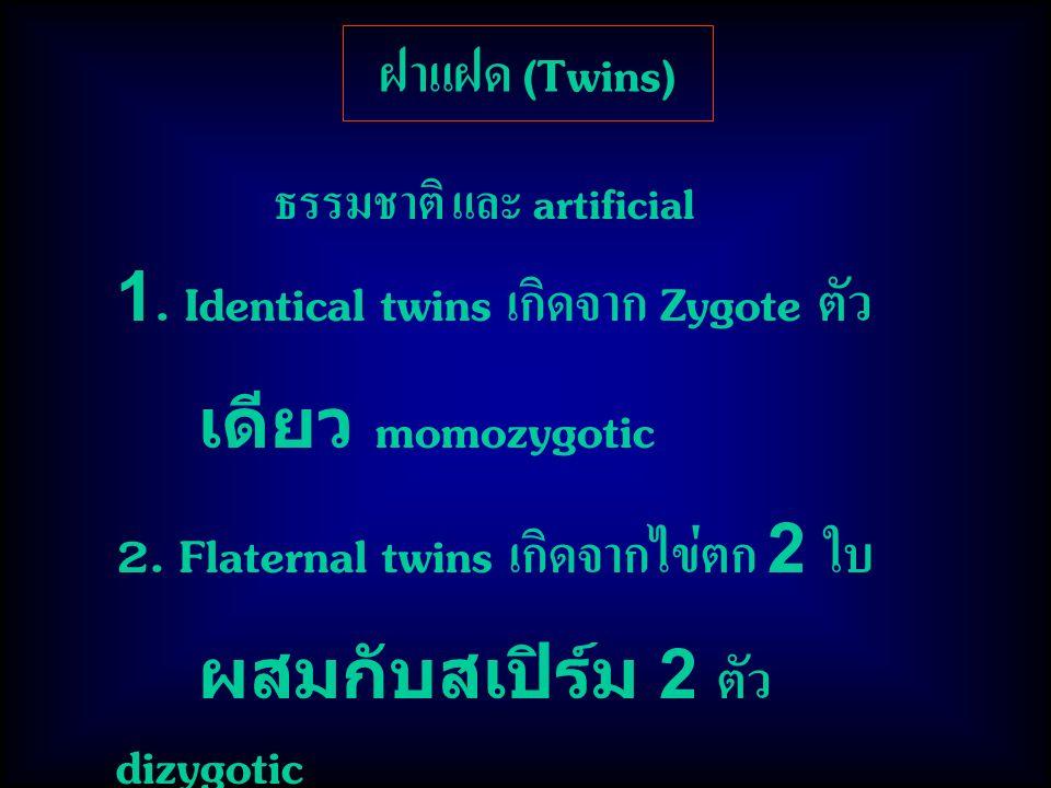 ฝาแฝด (Twins) ธรรมชาติ และ artificial 1. Identical twins เกิดจาก Zygote ตัว เดียว momozygotic 2. Flaternal twins เกิดจากไข่ตก 2 ใบ ผสมกับสเปิร์ม 2 ตัว