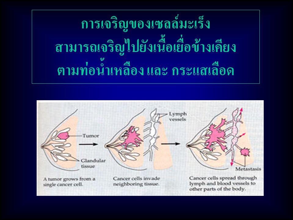 การเจริญของเซลล์มะเร็ง สามารถเจริญไปยังเนื้อเยื่อข้างเคียง ตามท่อน้ำเหลือง และ กระแสเลือด