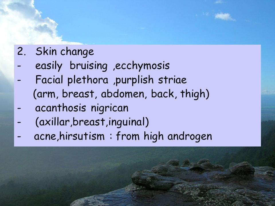 2.Skin change -easily bruising,ecchymosis -Facial plethora,purplish striae (arm, breast, abdomen, back, thigh) -acanthosis nigrican -(axillar,breast,inguinal) - acne,hirsutism : from high androgen