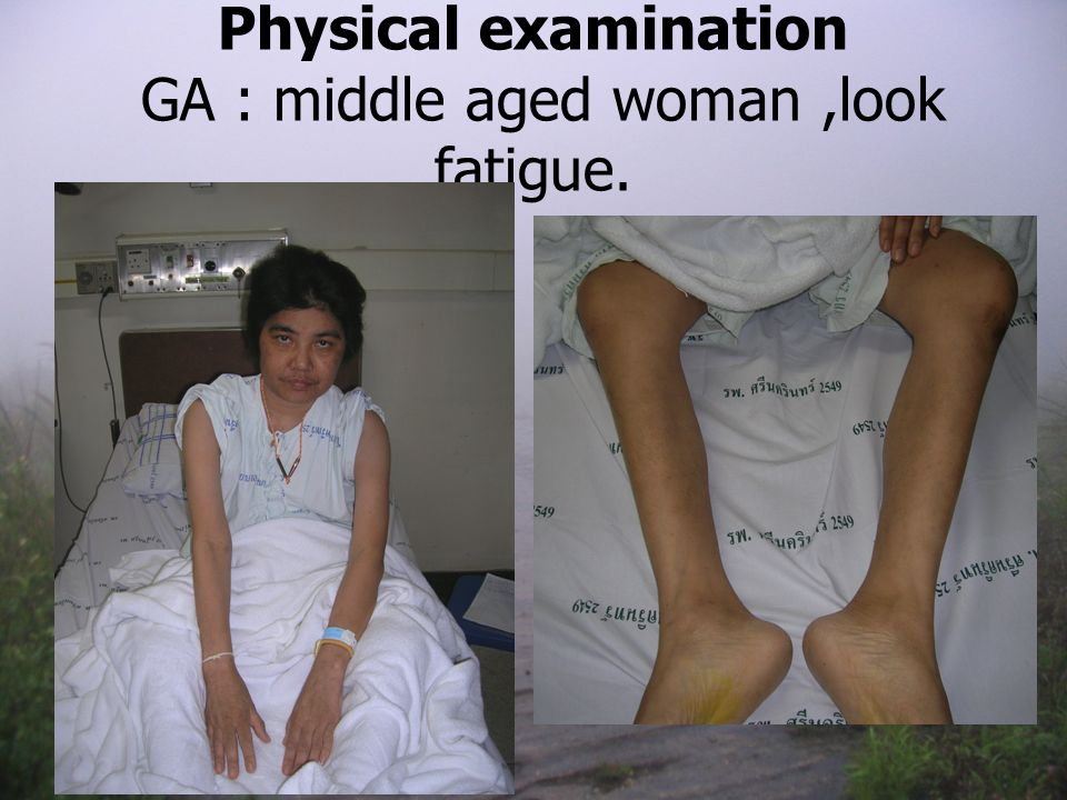 Physical examination GA : middle aged woman,look fatigue.