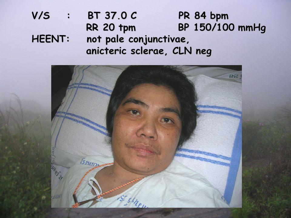 Physical examination V/S : BT 37.0 C PR 84 bpm RR 20 tpm BP 150/100 mmHg RR 20 tpm BP 150/100 mmHg HEENT: not pale conjunctivae, anicteric sclerae, CLN neg anicteric sclerae, CLN neg