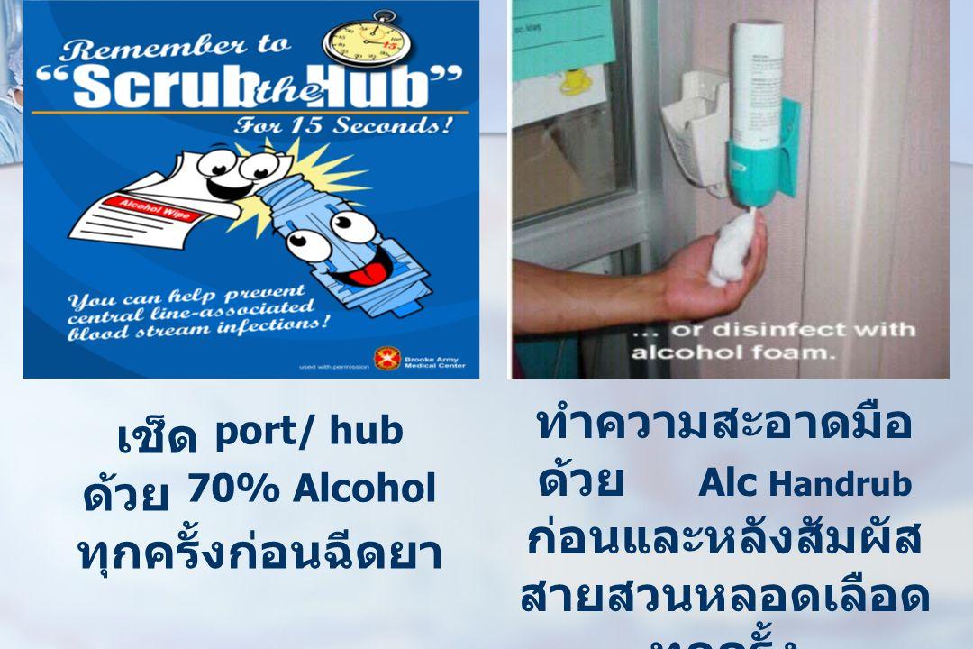 ทำความสะอาดมือ ด้วย Alc Handrub ก่อนและหลังสัมผัส สายสวนหลอดเลือด ทุกครั้ง เช็ด port/ hub ด้วย 70% Alcohol ทุกครั้งก่อนฉีดยา