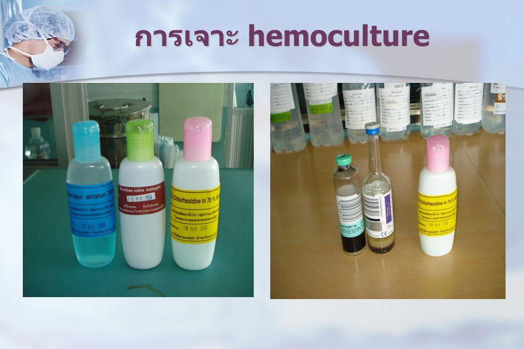 การเจาะ hemoculture