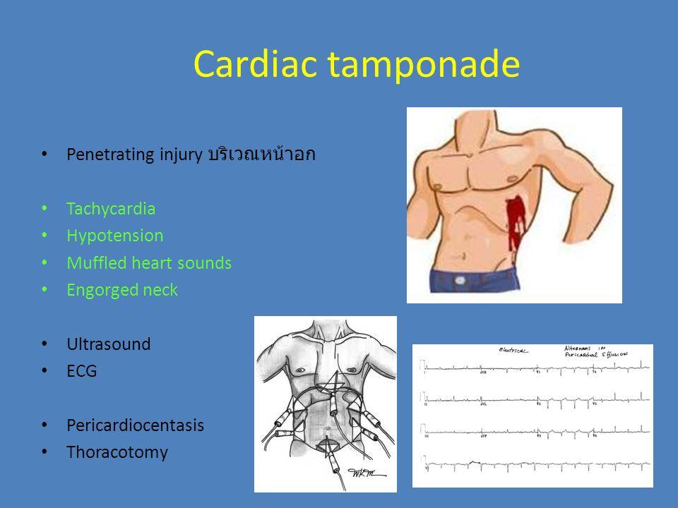 Cardiac tamponade Penetrating injury บริเวณหน้าอก Tachycardia Hypotension Muffled heart sounds Engorged neck Ultrasound ECG Pericardiocentasis Thoraco