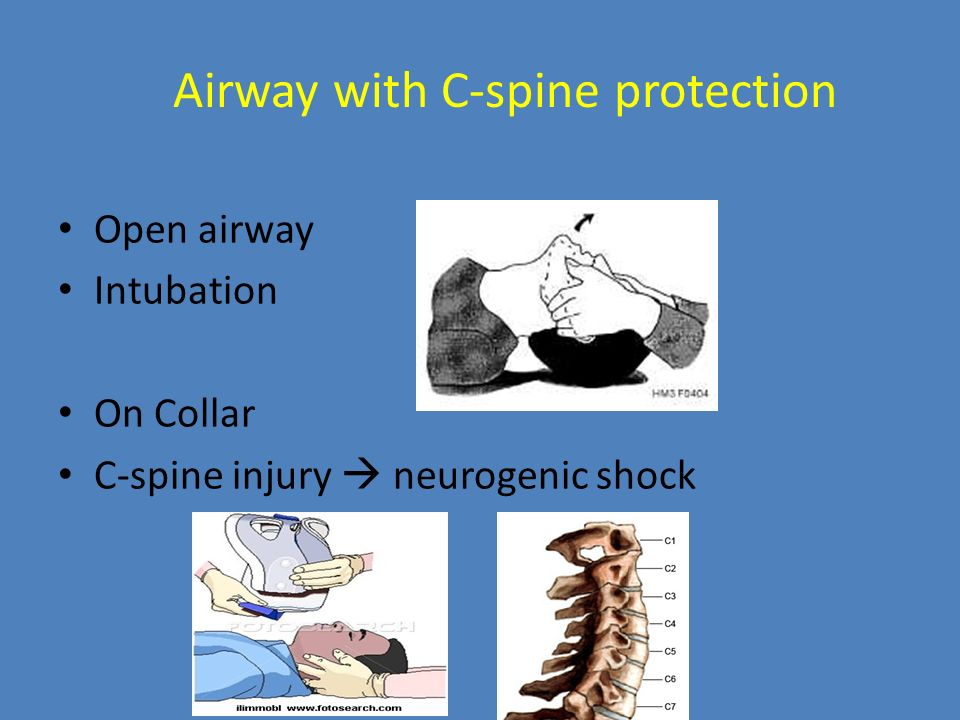 Airway with C-spine protection Open airway Intubation On Collar C-spine injury  neurogenic shock