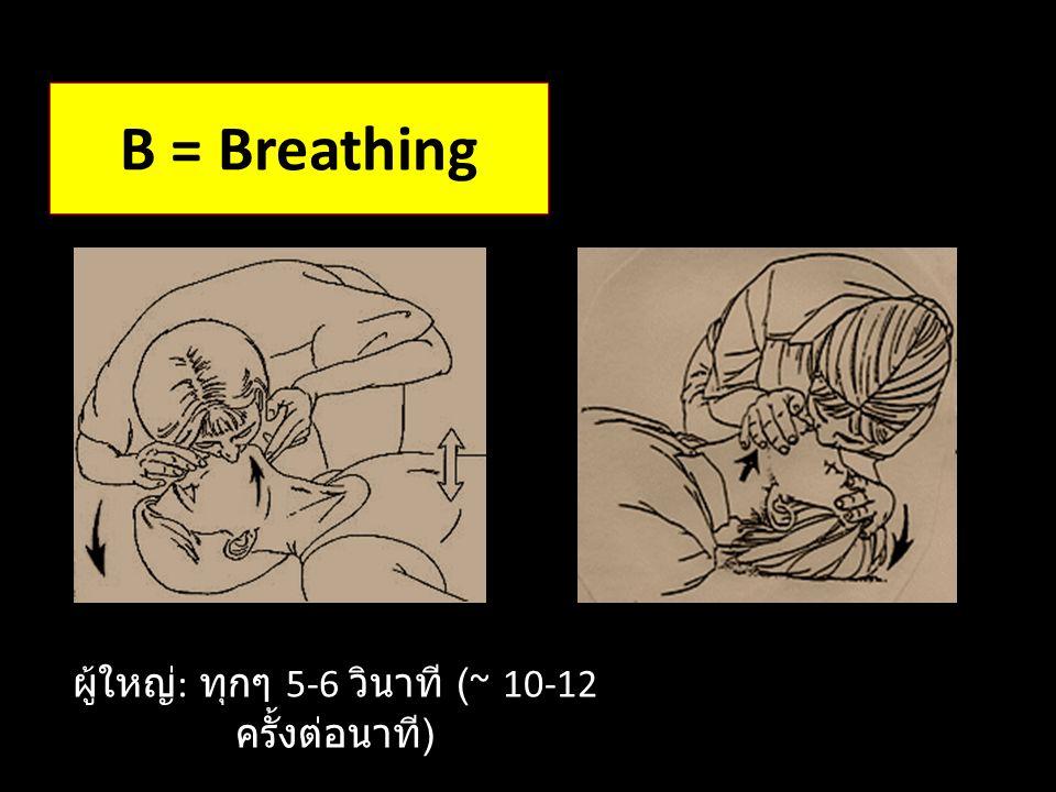 B = Breathing ผู้ใหญ่ : ทุกๆ 5-6 วินาที (~ 10-12 ครั้งต่อนาที )