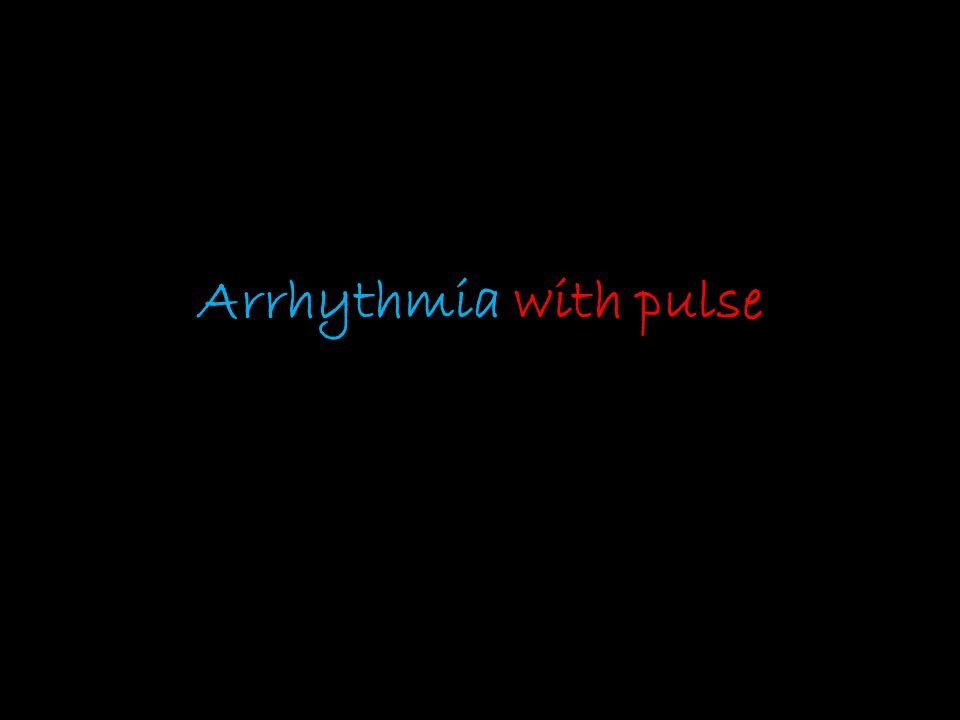 Arrhythmia with pulse