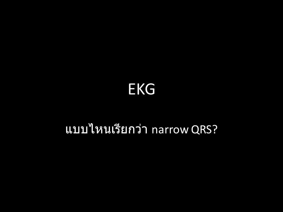 EKG แบบไหนเรียกว่า narrow QRS?