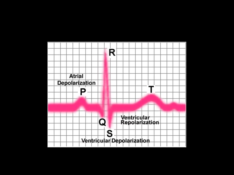 EKG แบบไหนเรียกว่า regular QRS?