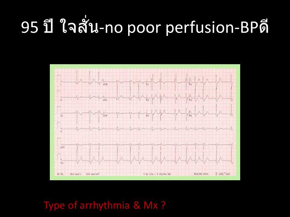 43 ปี ใจสั่น -no poor perfusion-BP ดี Type of arrhythmia & Mx ?