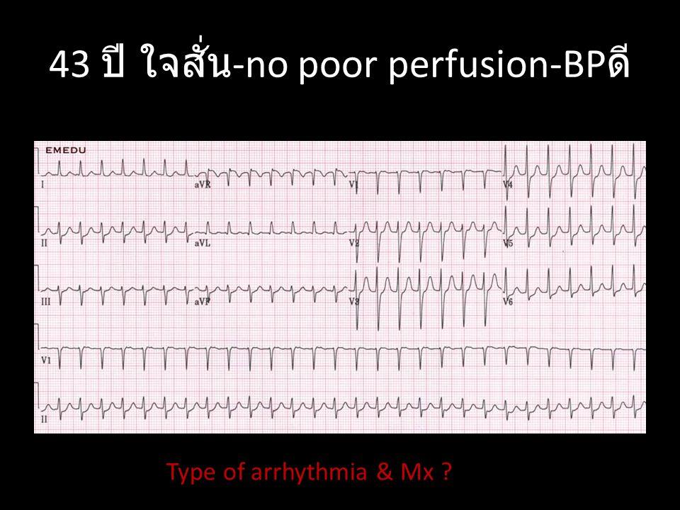 65 ปี ใจสั่น -no poor perfusion-BP ดี Type of arrhythmia & Mx ?