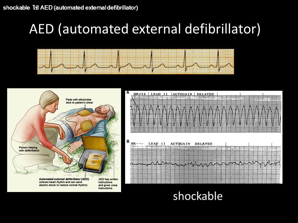 Automated External Defibrillator (AED) กดเปิดเครื่อง แปะแผ่นกาวที่ใช้กระตุ้นหัวใจ กดปุ่มวิเคราะห์คลื่นหัวใจผู้ป่วย และรอผลอ่าน และรอฟังคำแนะนำต่อไป ถ้าเครื่อง AED แนะนำให้ shock  ให้ประกาศ ให้ทุกคนออกห่างผู้ป่วย แล้วกดปุ่ม shock หลังจากนั้นให้ตามด้วยการ CPR ทันที จนครบ 5 รอบ แล้วจึงกดปุ่มวิเคราะห์คลื่นหัวใจผู้ป่วยอีกครั้ง และรอฟังคำแนะนำ