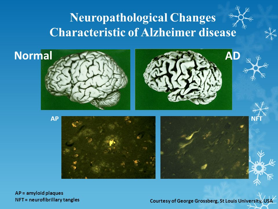 Normal AD APNFT AP = amyloid plaques NFT = neurofibrillary tangles Courtesy of George Grossberg, St Louis University, USA Neuropathological Changes Characteristic of Alzheimer disease