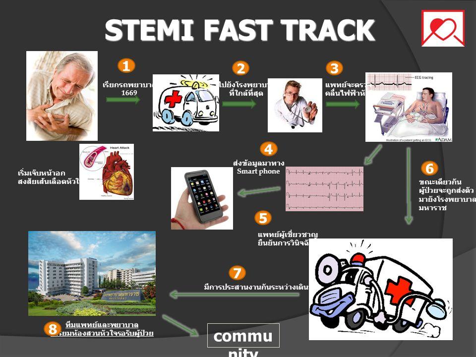 STEMI FAST TRACK เริ่มเจ็บหน้าอก สงสัยเส้นเลือดหัวใจอุดตัน เรียกรถพยาบาล 1669 ไปยังโรงพยาบาล ที่ใกล้ที่สุด แพทย์จะตรวจ คลื่นไฟฟ้าหัวใจ ส่งข้อมูลมาทาง