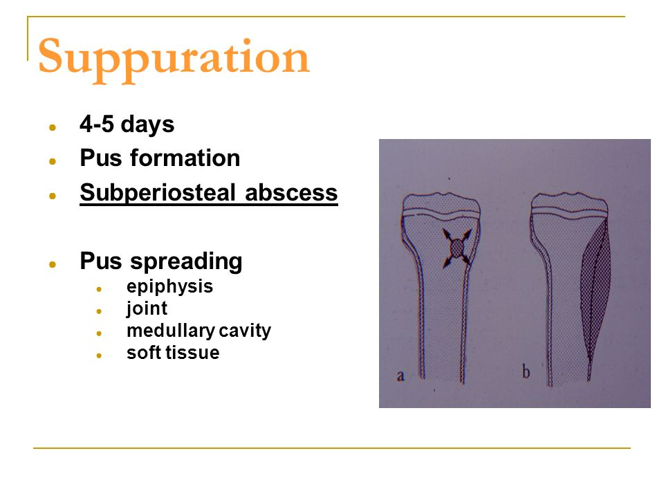 Suppuration ● 4-5 days ● Pus formation ● Subperiosteal abscess ● Pus spreading ● epiphysis ● joint ● medullary cavity ● soft tissue