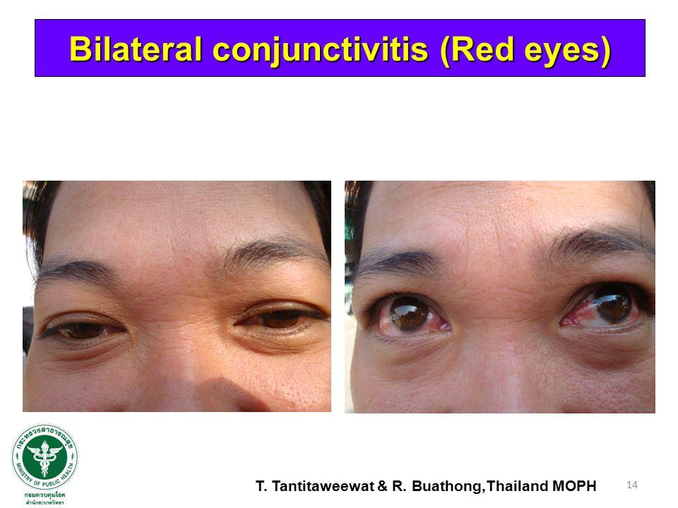 14 Bilateral conjunctivitis (Red eyes) T. Tantitaweewat & R. Buathong,Thailand MOPH