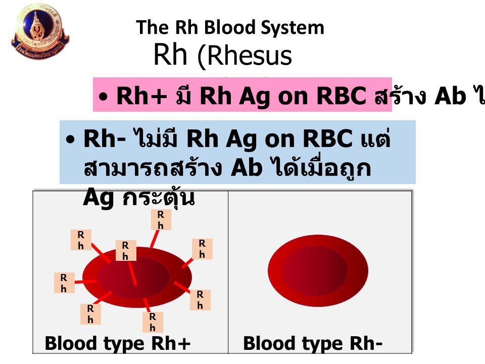 Rh (Rhesus monkey) The Rh Blood System Rh- ไม่มี Rh Ag on RBC แต่ สามารถสร้าง Ab ได้เมื่อถูก Ag กระตุ้น Rh+ มี Rh Ag on RBC สร้าง Ab ไม่ได้ Blood type