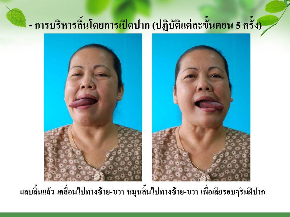 - การบริหารลิ้นโดยการเปิดปาก ( ปฏิบัติแต่ละขั้นตอน 5 ครั้ง ) แลบลิ้นแล้ว เคลื่อนไปทางซ้าย - ขวา หมุนลิ้นไปทางซ้าย - ขวา เพื่อเลียรอบๆริมฝีปาก