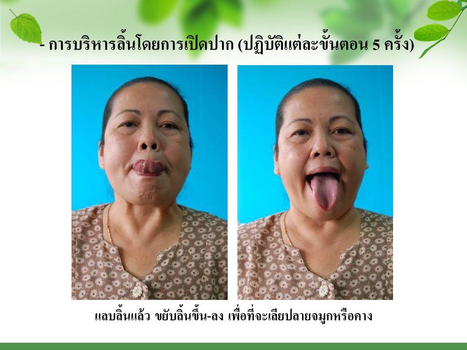 - การบริหารลิ้นโดยการเปิดปาก ( ปฏิบัติแต่ละขั้นตอน 5 ครั้ง ) แลบลิ้นแล้ว ขยับลิ้นขึ้น - ลง เพื่อที่จะเลียปลายจมูกหรือคาง