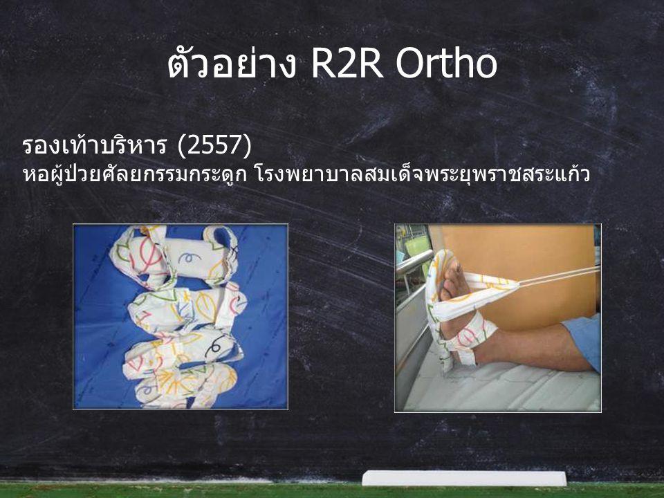 ตัวอย่าง R2R Ortho รองเท้าบริหาร (2557) หอผู้ป่วยศัลยกรรมกระดูก โรงพยาบาลสมเด็จพระยุพราชสระแก้ว