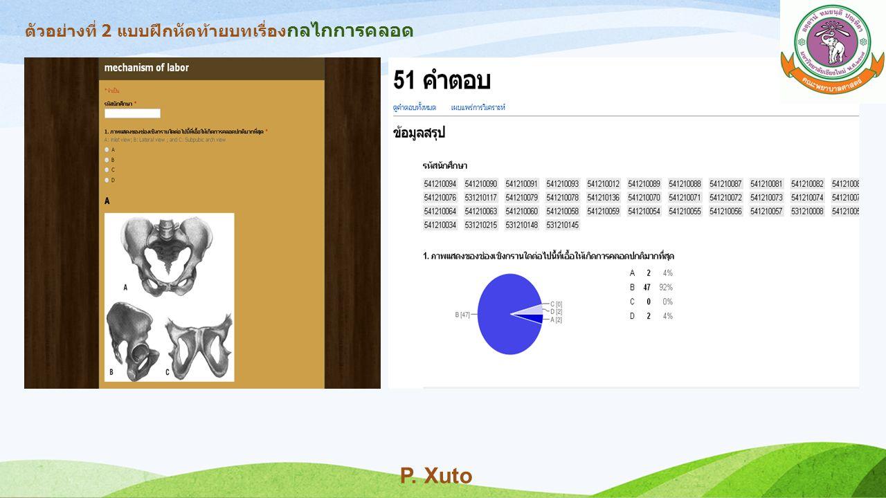 ตัวอย่างที่ 2 แบบฝึกหัดท้ายบทเรื่อง กลไกการคลอด P. Xuto