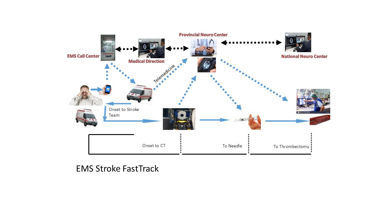Onset to Stroke Team Onset to CT Telemedicine To Needle To Thrombectomy EMS Stroke FastTrack