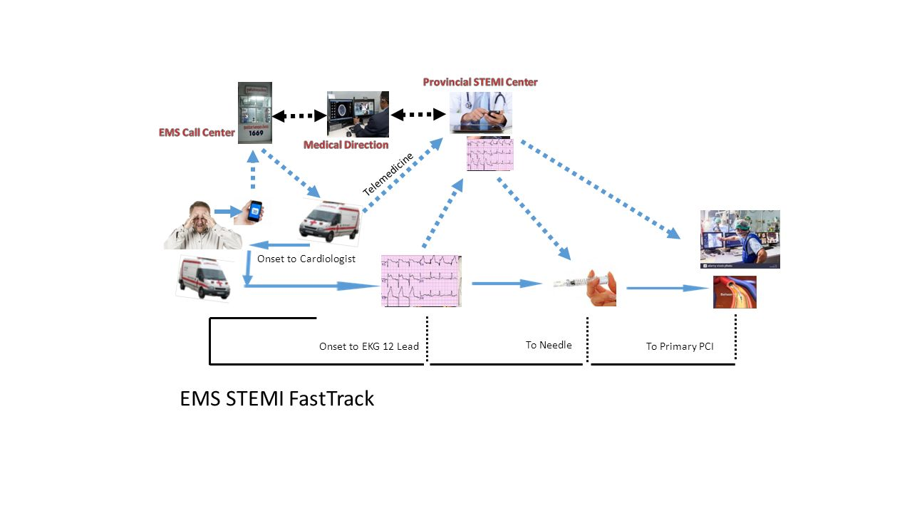 Onset to Cardiologist Onset to EKG 12 Lead Telemedicine To Needle To Primary PCI EMS STEMI FastTrack