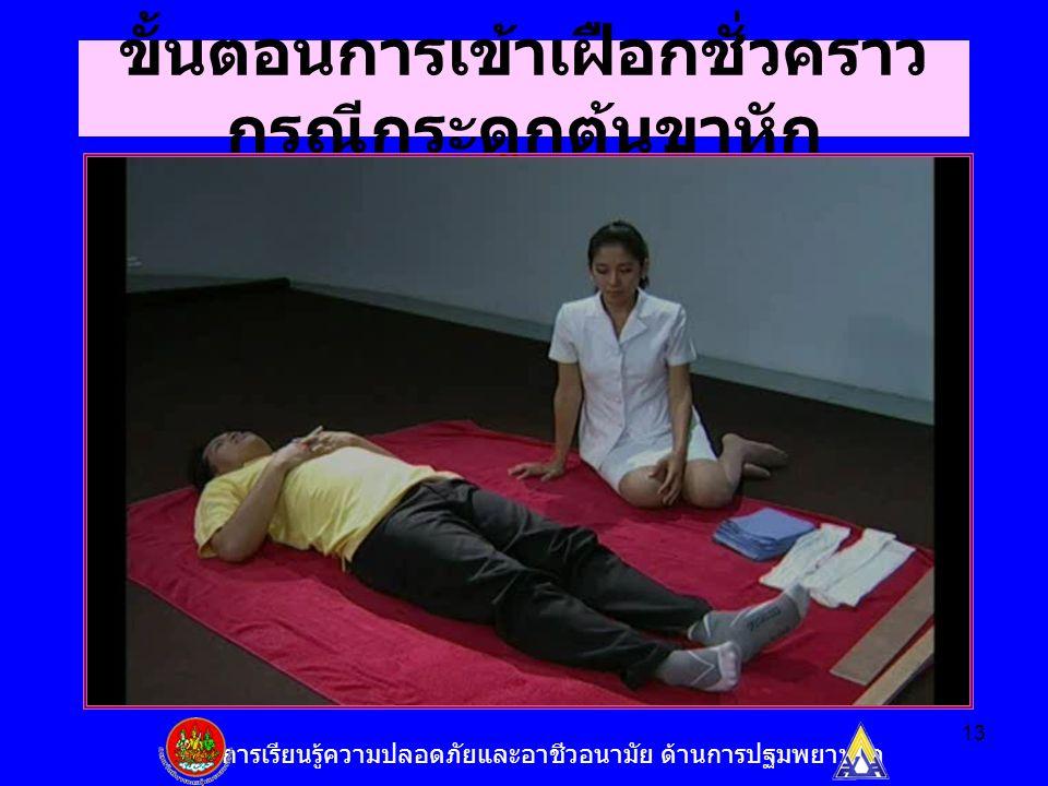 13 ขั้นตอนการเข้าเฝือกชั่วคราว กรณีกระดูกต้นขาหัก ชุดการเรียนรู้ความปลอดภัยและอาชีวอนามัย ด้านการปฐมพยาบาล