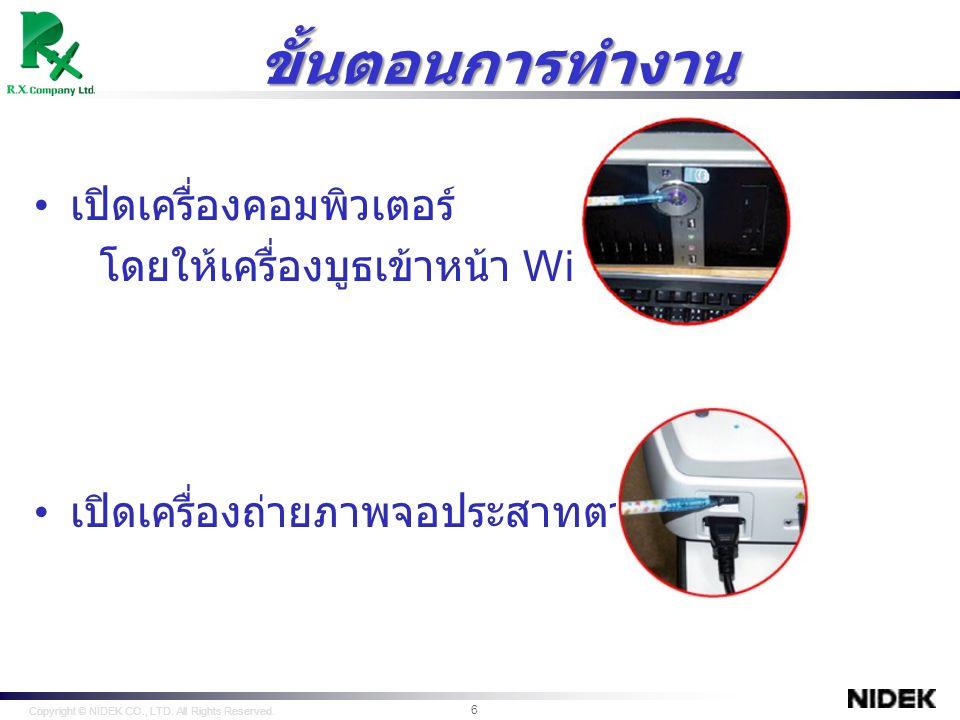 คลิก NAVIS EX เพื่อเริ่มการใช้งาน Copyright © NIDEK CO., LTD.