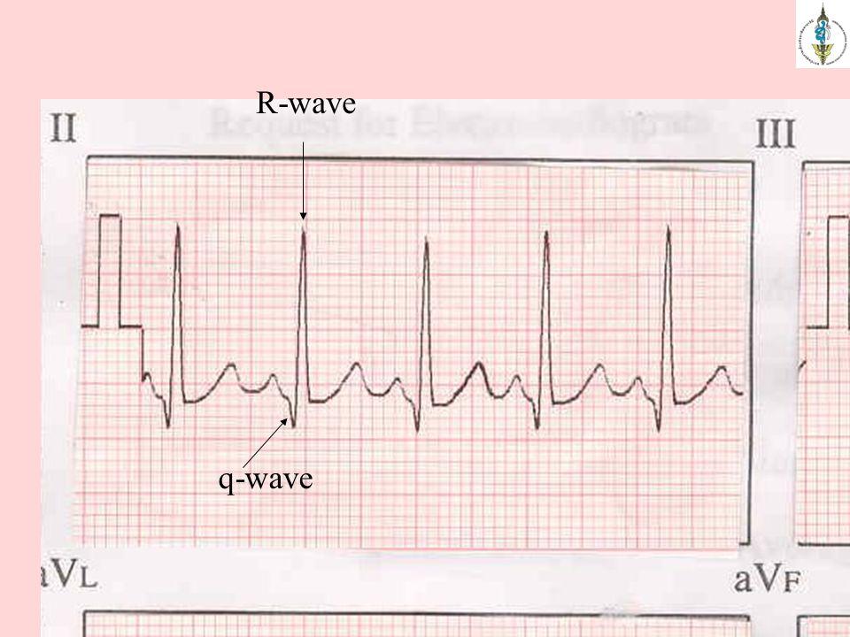 q-wave R-wave