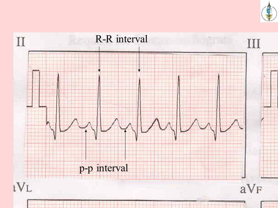 R-R interval p-p interval