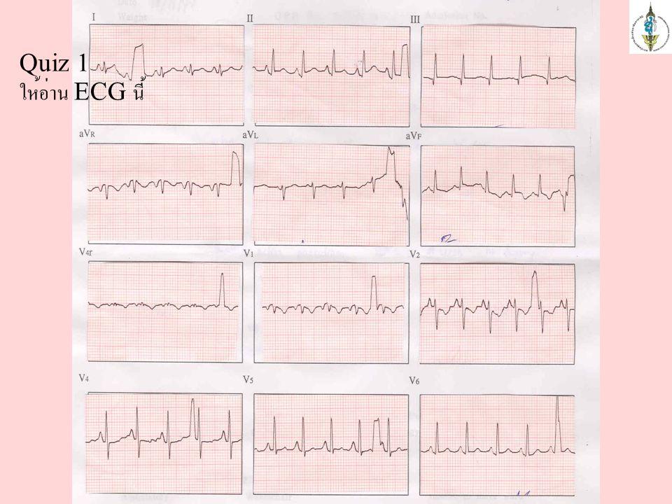 Quiz 1 ให้อ่าน ECG นี้