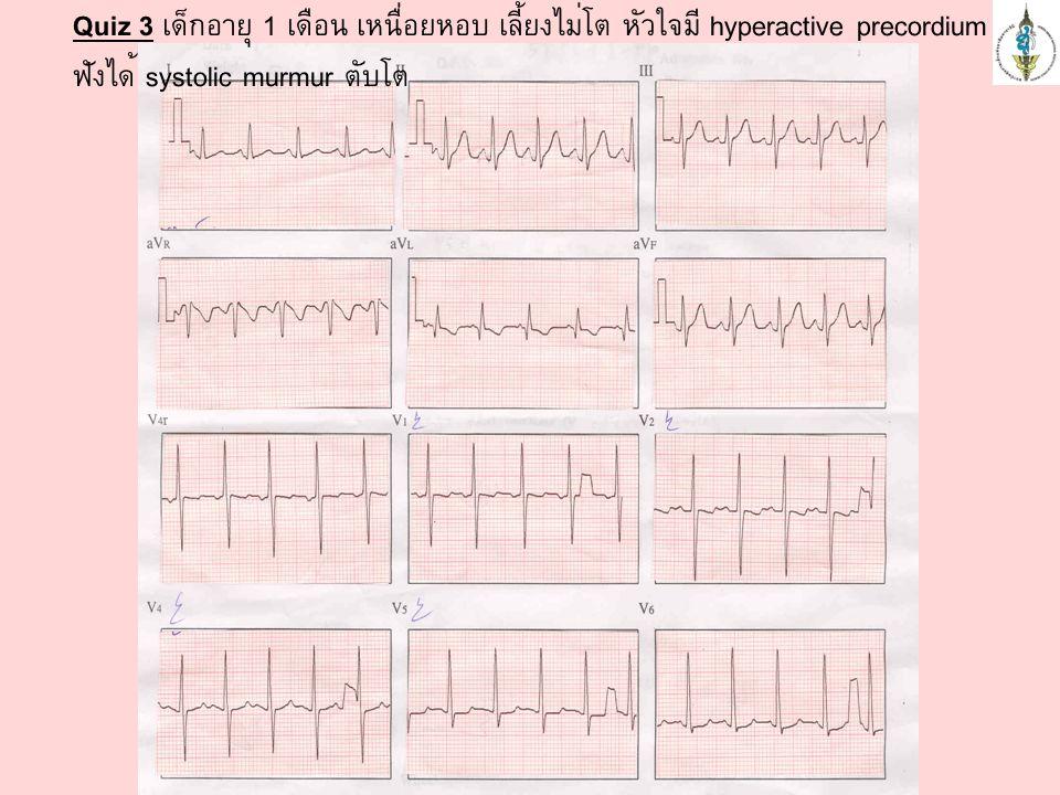 Quiz 3 เด็กอายุ 1 เดือน เหนื่อยหอบ เลี้ยงไม่โต หัวใจมี hyperactive precordium ฟังได้ systolic murmur ตับโต