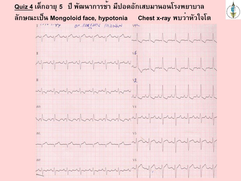 Quiz 4 เด็กอายุ 5 ปี พัฒนาการช้า มีปอดอักเสบมานอนโรงพยาบาล ลักษณะเป็น Mongoloid face, hypotonia Chest x-ray พบว่าหัวใจโต