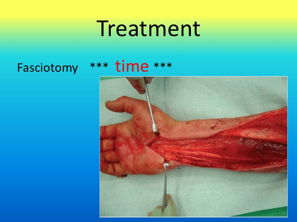 Treatment Fasciotomy *** time ***